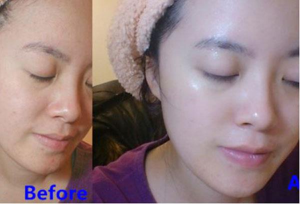 Sau 5 ngày sử dụng bạn cảm thấy da mình trắng sáng và mịn màng hơn