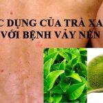 Điều trị vảy nến hiệu quả nhờ công dụng của trà xanh